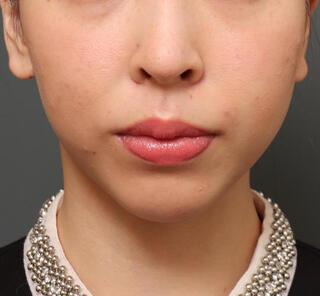 オザキクリニックLUXE新宿の顔の脂肪吸引+メーラーファット+人中短縮+口角挙上+鼻整形の症例写真(ビフォー)