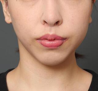 オザキクリニックLUXE新宿の顔の脂肪吸引+メーラーファット+人中短縮+口角挙上+鼻整形の症例写真(アフター)