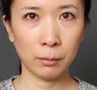 オザキクリニックLUXE新宿の3Dリポアイリフト+人中短縮+口角挙上の症例写真(ビフォー)