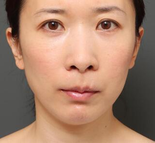 オザキクリニックLUXE新宿の3Dリポアイリフト+人中短縮+口角挙上の症例写真(アフター)