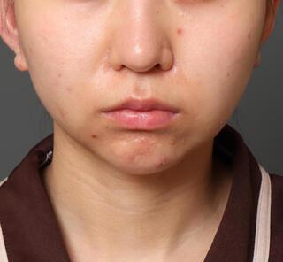 オザキクリニックLUXE新宿の顔の脂肪吸引(頬・アゴ下+メーラーファット+バッカルファット)+人中短縮+口角挙上の症例写真(ビフォー)