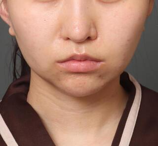 オザキクリニックLUXE新宿の顔の脂肪吸引(頬・アゴ下+メーラーファット+バッカルファット)+人中短縮+口角挙上の症例写真(アフター)