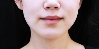 セルリアンタワーイセアクリニック(東京イセアクリニック渋谷院)のISEA HIFU(ドクター施術)1回の症例写真(ビフォー)