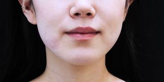 セルリアンタワーイセアクリニック(東京イセアクリニック渋谷院)のISEA HIFU(ドクター施術)1回の症例写真(アフター)