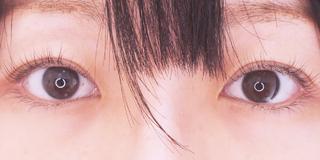 セルリアンタワーイセアクリニック(東京イセアクリニック渋谷院)の埋没法ダブルの症例写真(アフター)