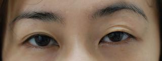 みずほクリニックの 眼瞼下垂手術とその後の二重ライン修正の症例写真(ビフォー)