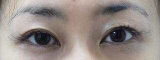 みずほクリニックの 眼瞼下垂手術とその後の二重ライン修正の症例写真(アフター)