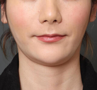 オザキクリニックLUXE新宿の顔の脂肪吸引(頬・アゴ下)+メーラーファットの症例写真(ビフォー)