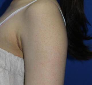 オザキクリニックLUXE新宿の毛孔性苔癬フラクセルコンビネーションの症例写真(アフター)
