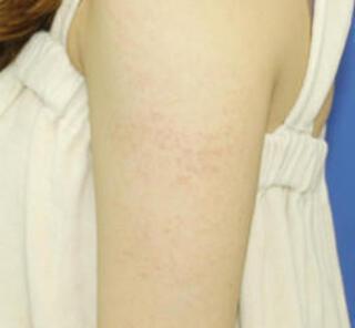 オザキクリニックLUXE新宿の毛孔性苔癬フラクセルⅡの症例写真(ビフォー)