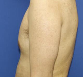 オザキクリニックLUXE新宿の毛孔性苔癬フラクセルⅡの症例写真(アフター)