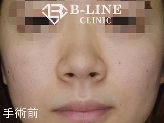 B-LINE CLINICの【小鼻縮小術】 1ヶ月後の症例写真(ビフォー)