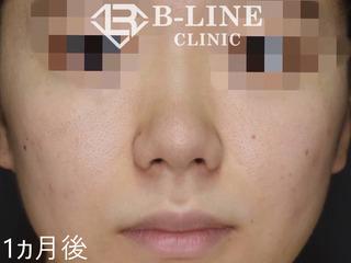 B-LINE CLINICの【小鼻縮小術】 1ヶ月後の症例写真(アフター)