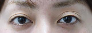 みずほクリニックの三重と両瞼の開きのバランス改善・左上瞼のくぼみの改善治療の症例写真(ビフォー)