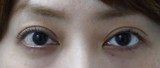 みずほクリニックの三重と両瞼の開きのバランス改善・左上瞼のくぼみの改善治療の症例写真(アフター)