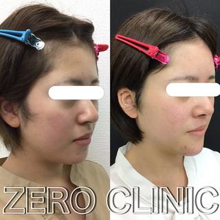 東京ゼロクリニック銀座のおでこヒアルロン酸・顎プロテーゼ・ブルーローズリフトの症例写真(ビフォー)