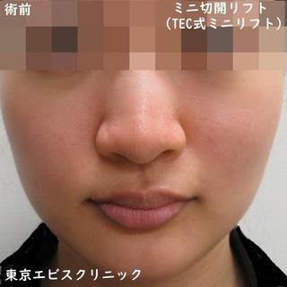 東京エビスクリニックのミニ切開リフト(TEC式ミニリフト)の症例写真(ビフォー)