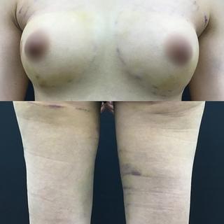 銀座3丁目・BANNAI美容クリニックのアキ―セル併用コンデンスリッチ脂肪豊胸+BANNAI式オリジナル3D注入法+ベイザー&シリンジ法の症例写真(ビフォー)
