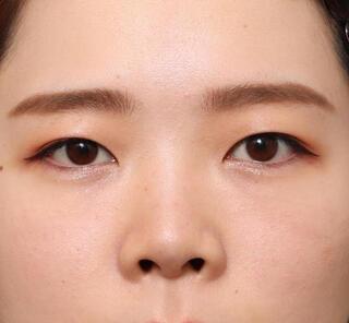 オザキクリニックLUXE新宿の全切開二重まぶた法+上まぶたの脱脂+眼瞼下垂の症例写真(ビフォー)