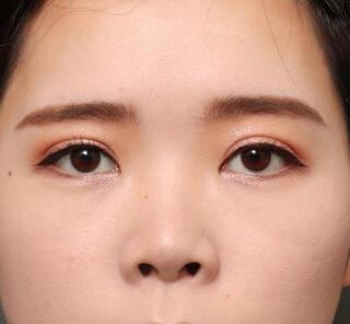 オザキクリニックLUXE新宿の全切開二重まぶた法+上まぶたの脱脂+眼瞼下垂の症例写真(アフター)