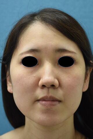 みずほクリニックの頬の脂肪吸引で美しいフェイスラインの小顔に!!の症例写真(ビフォー)