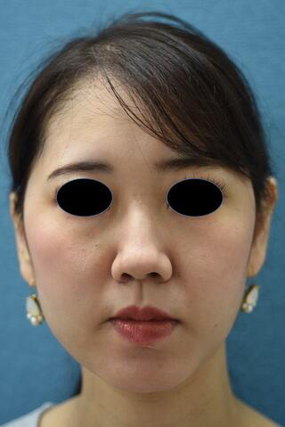 みずほクリニックの頬の脂肪吸引で美しいフェイスラインの小顔に!!の症例写真(アフター)
