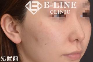 B-LINE CLINICの【ピコレーザー(ピコスポット)】の症例写真(ビフォー)