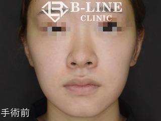 B-LINE CLINICの【小鼻縮小術】の症例写真(ビフォー)