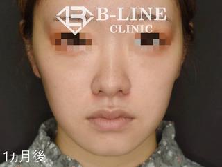 B-LINE CLINICの【小鼻縮小術】の症例写真(アフター)
