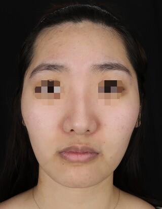 Taide Suenaga Clinic(タイデスエナガクリニック)の鼻尖縮小の症例写真(ビフォー)