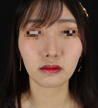 Taide Suenaga Clinic(タイデスエナガクリニック)の鼻尖縮小の症例写真(アフター)