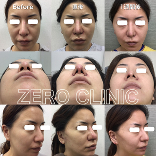 東京ゼロクリニック銀座の鼻プロテーゼ・鼻尖縮小・小鼻縮小の症例写真(ビフォー)