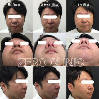 東京ゼロクリニック銀座の鼻尖形成の症例写真(アフター)