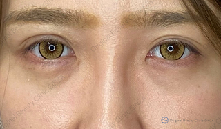 Original Beauty Clinic GINZAの目頭切開の症例写真(ビフォー)
