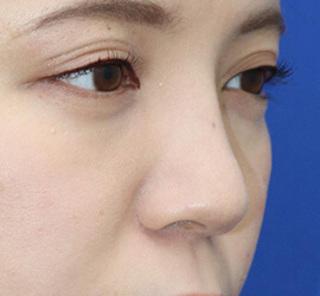 オザキクリニックLUXE新宿の【鼻整形】鼻プロテーゼ+耳介軟骨移植の症例写真(ビフォー)