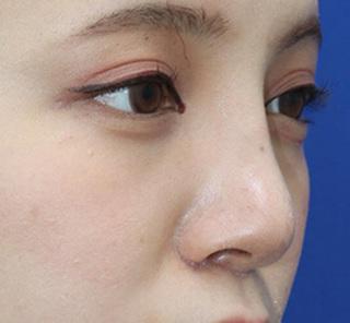 オザキクリニックLUXE新宿の【鼻整形】鼻プロテーゼ+耳介軟骨移植の症例写真(アフター)
