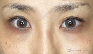 Original Beauty Clinic GINZAの目頭切開の症例写真(アフター)