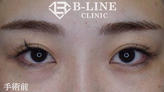 B-LINE CLINICの【韓流目頭切開術】6日後抜糸直後の症例写真(ビフォー)