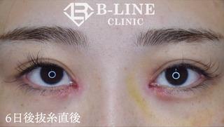 B-LINE CLINICの【韓流目頭切開術】6日後抜糸直後の症例写真(アフター)
