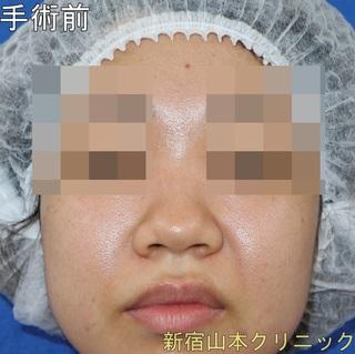 山本クリニックの鼻尖形成術(鼻尖縮小術・だんご鼻解消術)の症例写真(ビフォー)