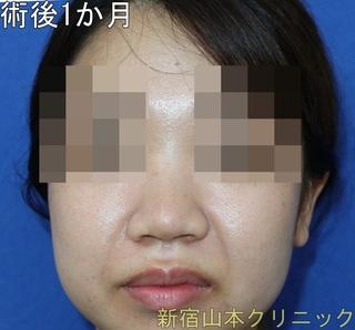 山本クリニックの鼻尖形成術(鼻尖縮小術・だんご鼻解消術)の症例写真(アフター)