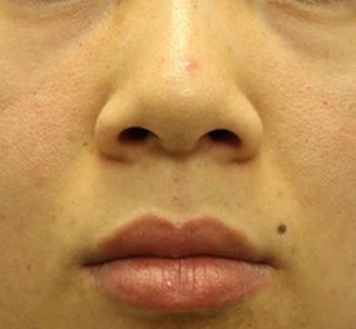 オザキクリニックLUXE新宿の【鼻整形】鼻先縮小+小鼻縮小+鼻先軟骨移植の症例写真(ビフォー)
