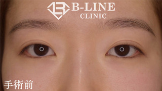 B-LINE CLINICの【眼瞼下垂手術・切開法二重術】6ヶ月後の症例写真(ビフォー)