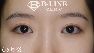 B-LINE CLINICの【眼瞼下垂手術・切開法二重術】6ヶ月後の症例写真(アフター)
