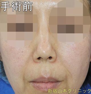 山本クリニックの人中短縮術(鼻下短縮術・リップリフト)の症例写真(ビフォー)