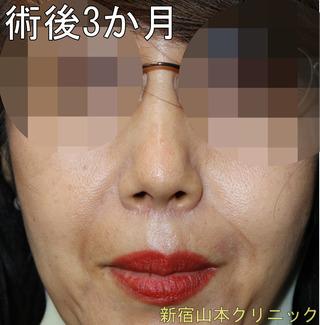山本クリニックの人中短縮術(鼻下短縮術・リップリフト)の症例写真(アフター)