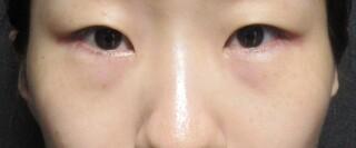 X CLINICの切らない目の下のたるみとり+コンデンスリッチ+マイクロナノファット脂肪注入+Xクロスダブルの症例写真(ビフォー)
