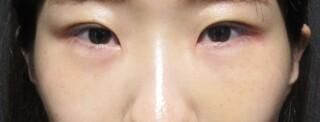 X CLINICの切らない目の下のたるみとり+コンデンスリッチ+マイクロナノファット脂肪注入+Xクロスダブルの症例写真(アフター)
