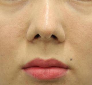 オザキクリニックLUXE新宿の【鼻整形】鼻先縮小+小鼻縮小+鼻先軟骨移植の症例写真(アフター)