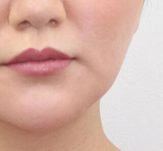 オザキクリニック目黒祐天寺院のVライン小顔リフトの症例写真(ビフォー)